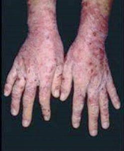 Solvent Dermatitis